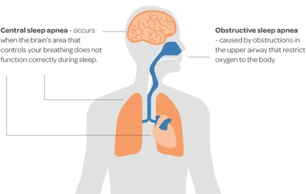 Illustration on the organs of the body affected by two types of sleep apnea